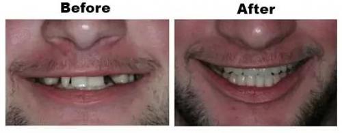 Full-mouth-rehabilitation-new-1